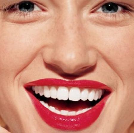 Капи для відбілювання зубів: плюси і мінуси